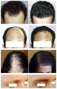 Hair replacement Malaysia